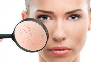 خشکی پوست عاملی برای ایجاد چین و چروک در پوست صورت است